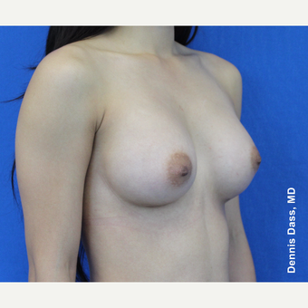 18-24 year old woman treated with Sientra Breast Implants after 3353100