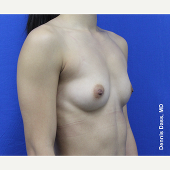 18-24 year old woman treated with Sientra Breast Implants before 3353100