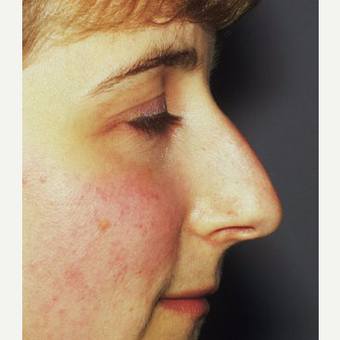 25-34 year old woman treated with Rhinoplasty before 3711559
