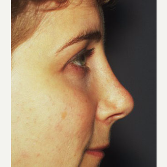 25-34 year old woman treated with Rhinoplasty after 3711559
