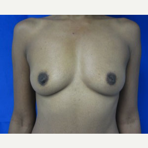Breast Augmentation before 3054747