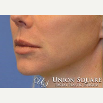 Lip lift performed under local anesthesia before 3489572