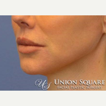 Lip lift performed under local anesthesia after 3489572