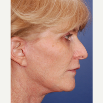 55-64 year old woman treated with Facelift after 3625212