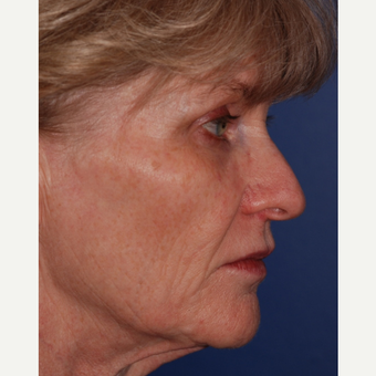 55-64 year old woman treated with Facelift before 3625212