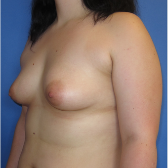 18-24 year old woman treated with Breast Augmentation (360cc) before 3262600