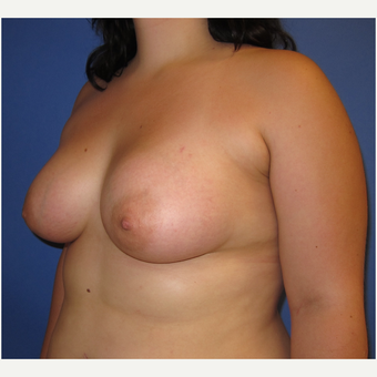 18-24 year old woman treated with Breast Augmentation (360cc) after 3262600