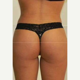18-24 year old woman treated with Butt Augmentation after 3039543