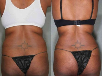 Vaser LipoSuction  31 Year Old female Treated For Unwanted Fat