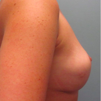 35-44 year old woman treated with Breast Augmentation after 3467364
