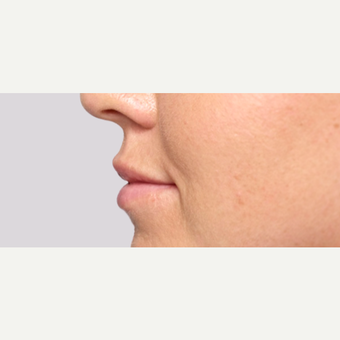 Woman treated with Restylane Silk after 1711158