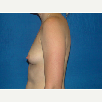 Breast Augmentation with 425 cc Silicone Implants before 3623118