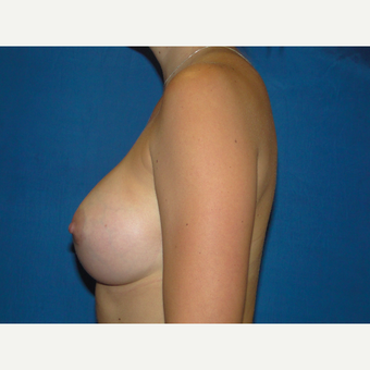 Breast Augmentation with 425 cc Silicone Implants after 3623118