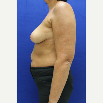 45-54 year old woman treated with Breast Augmentation before 3384490