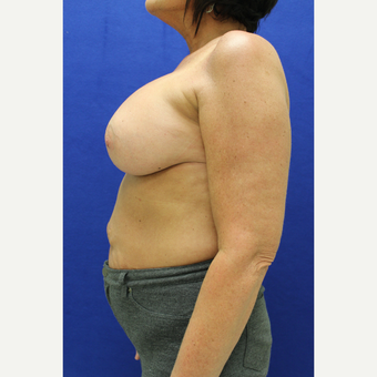 45-54 year old woman treated with Breast Augmentation after 3384490