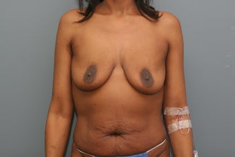 Mommy Makeover: breast augmentation and tummy tuck before 1102566