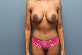 Mommy Makeover: breast augmentation and tummy tuck after 1102566