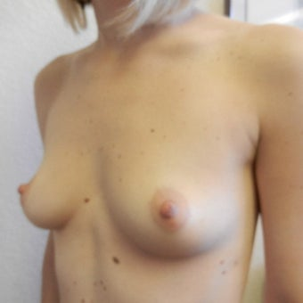 25-34 year old woman treated with Mentor Breast Implants before 2596199