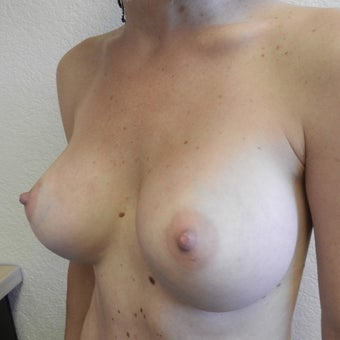 25-34 year old woman treated with Mentor Breast Implants after 2596199