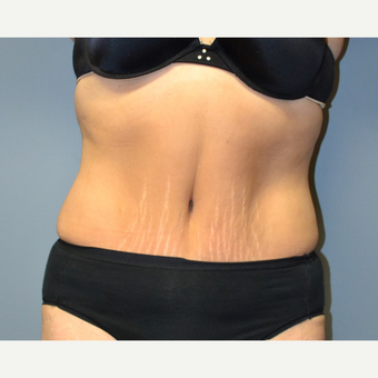 Liposuction - 60 year old female, 2 months post-op after 2696553