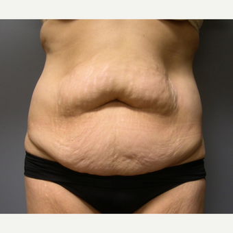 Liposuction - 60 year old female, 2 months post-op before 2696553