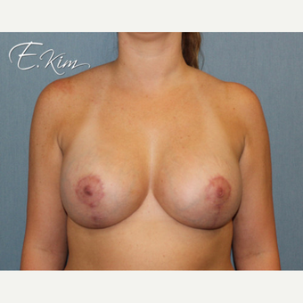 35-44 year old woman treated with Breast Lift after 3663307