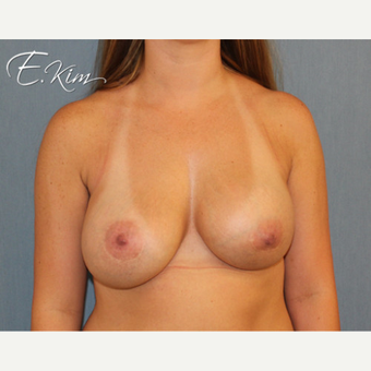 35-44 year old woman treated with Breast Lift before 3663307