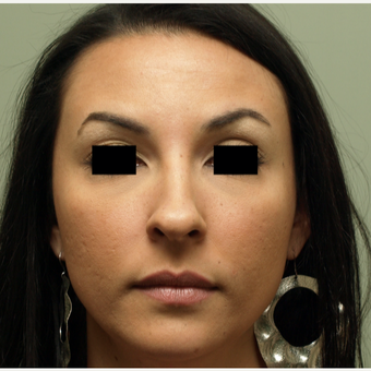 25-34 year old woman treated with Rhinoplasty before 3567018