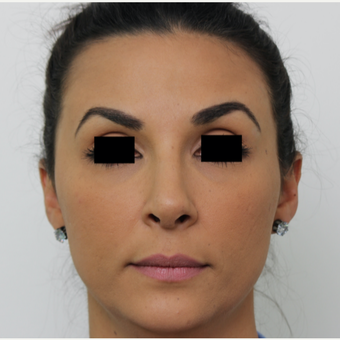 25-34 year old woman treated with Rhinoplasty after 3567018
