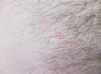 35-44 year old man treated for Mole Removal in groin