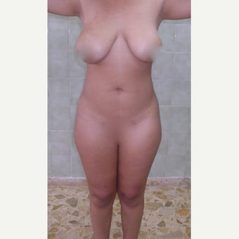 25-34 year old woman treated with Liposculpture before 1901568