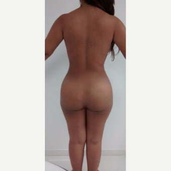 25-34 year old woman treated with Liposculpture 1901568