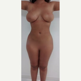 25-34 year old woman treated with Liposculpture after 1901568