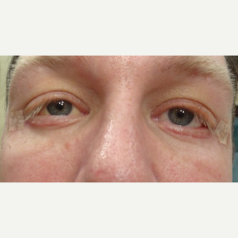 44 year old man treated with Eyelid Surgery after 3749243