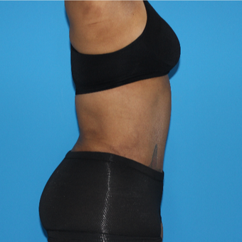45-54 year old woman treated with Tummy Tuck after 3332959