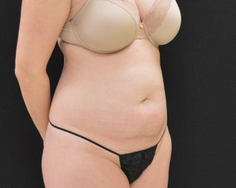 C.L.A.S.S ® Tummy Tuck before 1320639