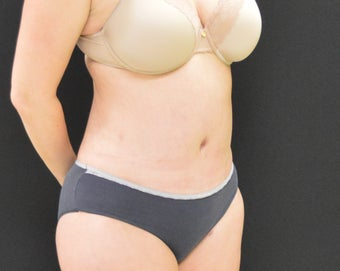 C.L.A.S.S ® Tummy Tuck after 1320639