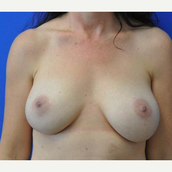 Breast Augmentation after 3206528