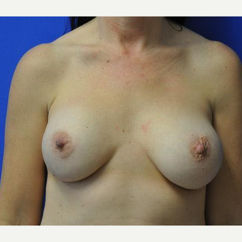 Breast Augmentation before 3206528