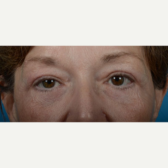 Woman treated with Upper Eyelid Surgery, Lower Eyelid Surgery, and Eye Bags Treatment after 2681854