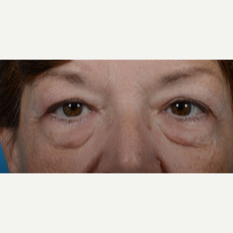 Woman treated with Upper Eyelid Surgery, Lower Eyelid Surgery, and Eye Bags Treatment before 2681854