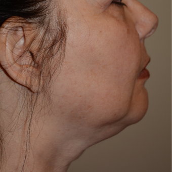 55-64 year old woman treated with Chin Liposuction before 3294085
