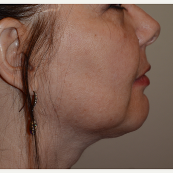 55-64 year old woman treated with Chin Liposuction after 3294085