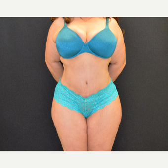 This woman underwent tummy tuck, she is shown just 6 months post after 3482512
