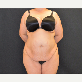This woman underwent tummy tuck, she is shown just 6 months post before 3482512
