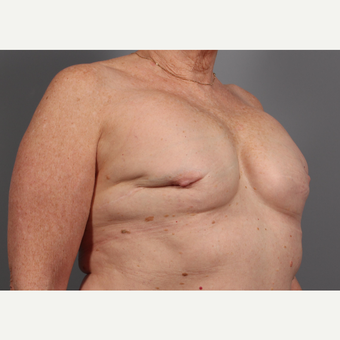 65-74 year old woman treated with Breast Reconstruction Revision before 3371048