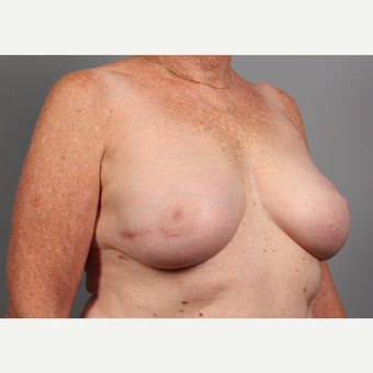 65-74 year old woman treated with Breast Reconstruction Revision after 3371048