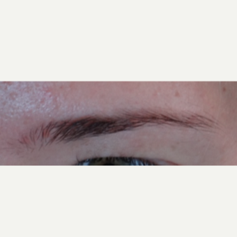 18-24 year old woman treated with Hair Transplant before 3066744
