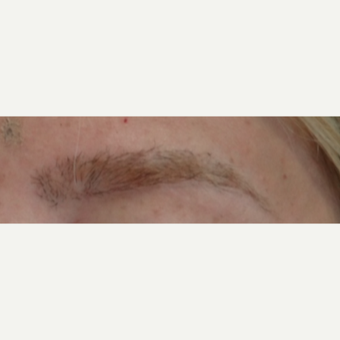18-24 year old woman treated with Hair Transplant after 3066744