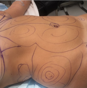 18-24 year old woman treated with Liposuction 2644809